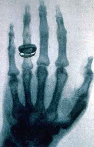 X-ray by Wilhelm Röntgen  of Albert von Kölliker's hand  Wikimedia Commons